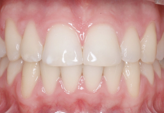 maloclusion-after