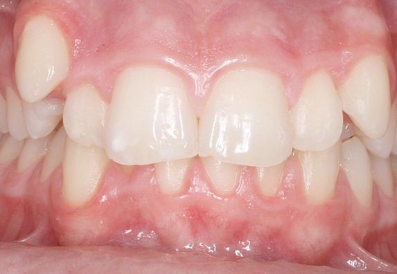 maloclusion-before