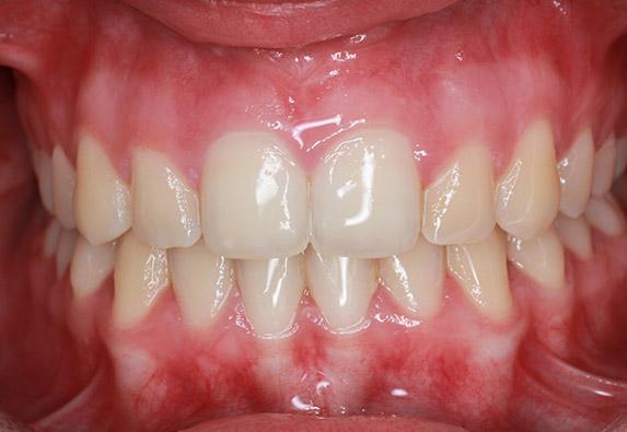 ortodoncia-adolescente-after