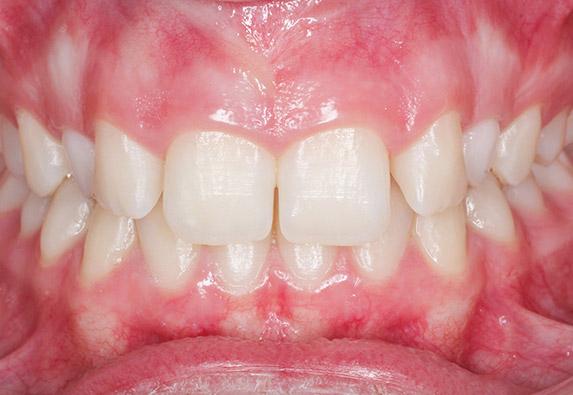 ortodoncia-adolescente-before