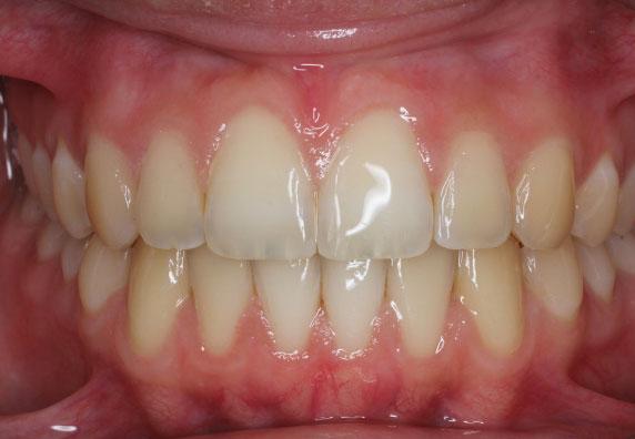 ortodoncia-invisible-adolescente-after