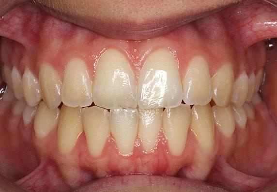 ortodoncia-invisible-adolescente-before