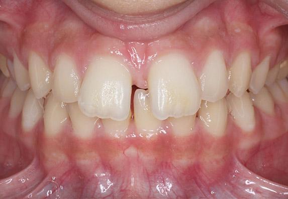 ortodoncia-ninnos-after