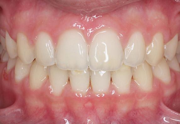 ortodoncia-ninnos-before