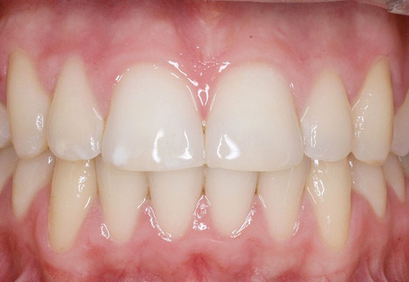 maloclusion2-after