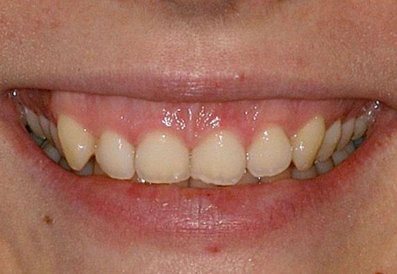 sonrisa-gingival-nuevo-before